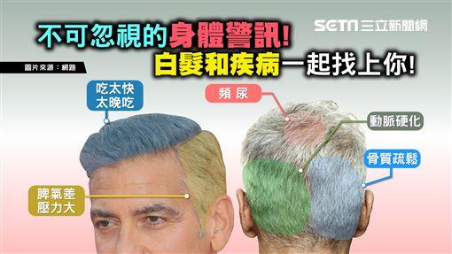健康2.0,白髮/TVBS提供