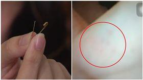 台中幼兒園學童疑遭教師別針戳手(圖/資料照、翻攝自臉書)