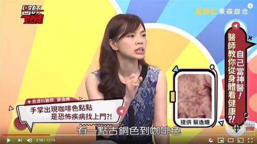 男病人手腳長滿「咖啡色小圓點」,確診罹患梅毒。(圖/翻攝自醫師好辣YouTube)