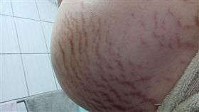媽媽懷孕肚子滿是妊娠紋。(圖/翻攝自爆廢公社)