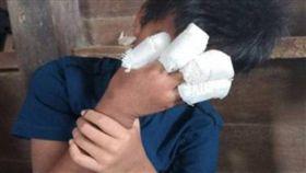 鞭炮炸碎4指男童自己包紮好 母打開看差點暈倒(圖/中國報)