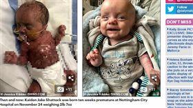 英國,嬰兒,皮膚,早產,父母,心碎,手術 https://www.dailymail.co.uk/news/article-7071213/Baby-born-without-skin-body-defies-doctors-grim-prognosis.html