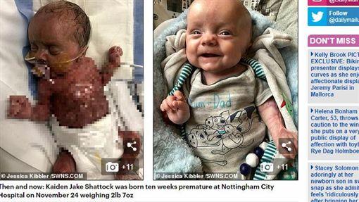 英國,嬰兒,皮膚,早產,父母,心碎,手術https://www.dailymail.co.uk/news/article-7071213/Baby-born-without-skin-body-defies-doctors-grim-prognosis.html