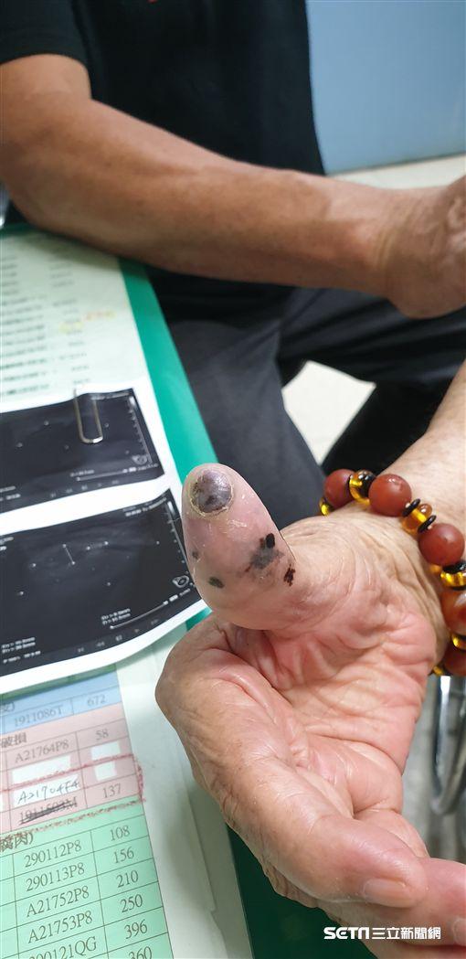 91歲施姓阿嬤右大拇指存在30年的「痣」發生癌變。(圖/彰化醫院提供)
