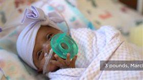 世界最袖珍嬰兒是她 出生245公克僅一顆蘋果大(圖/翻攝自Sharp Mary Birch Hospital for Women & Newborns)