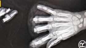 8歲留守妹在家玩!手指被「豆製品機器」啪啪切下...斷了4根。(圖/翻攝自梨視頻)