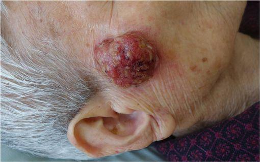 皮膚癌(萬芳醫院提供)