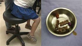 流出咖啡色分泌物…8歲女童下體飄惡臭 醫檢查挖出5玩具(圖/資料照、翻攝自廣州日報﹚