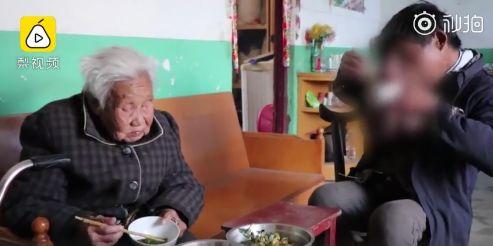 出生得病沒錢醫 52歲男臉頂「籃球大腫瘤」成怪物!(圖/翻攝自梨視頻)
