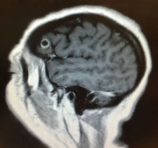 ▲女子幻覺竟是寄生蟲入腦。(圖/Mount Sinai Health System)
