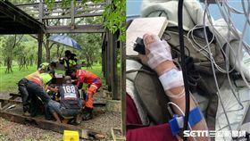 台中青桐林生態園區木棧道崩塌、患者受訪/翻攝畫面、記者張展誌攝