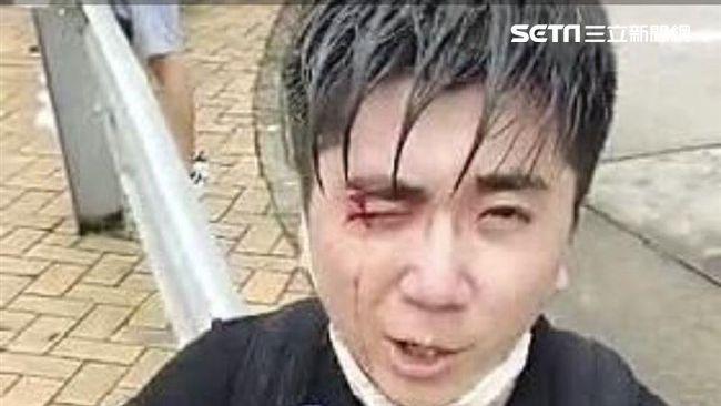 影/警察開槍!港民遭槍擊中眼睛 鮮血直流喊:完全看不到