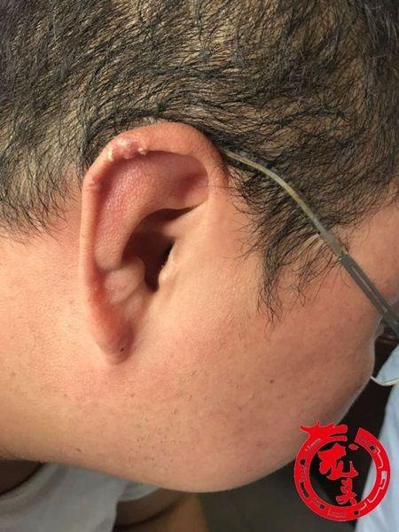 痛風多年狂嗑海鮮 男長上千顆痛風石(圖/翻攝自龍頭新聞)