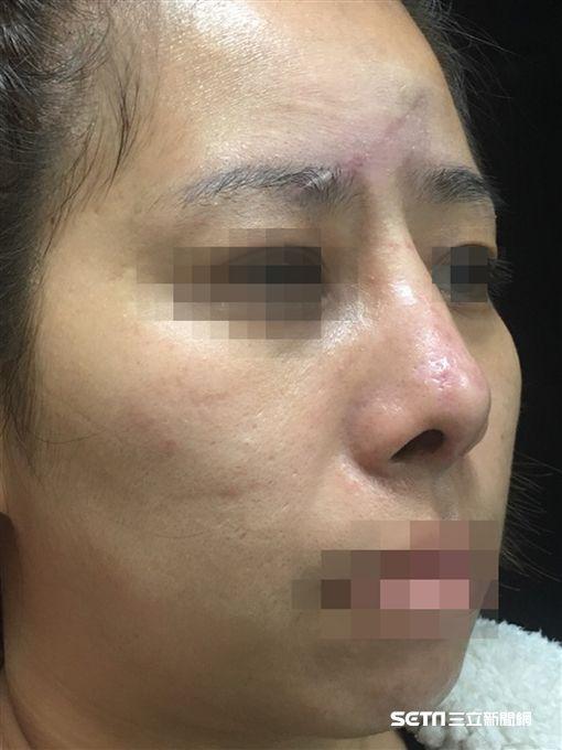 40歲患者許小姐不慎從樓梯上跌下,造成臉部嚴重受傷,手術以自身耳臀組織進行修復。(圖/彰化醫院提供)