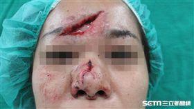 40歲患者許小姐不慎從樓梯上跌下,造成臉部嚴重受傷。(圖/彰化醫院提供)