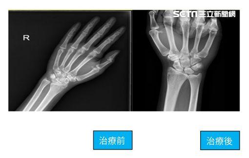 安南醫院,骨科,許惟傑,三角軟骨,手術,擰毛巾,轉門把