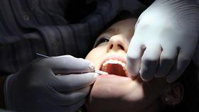 牙齒、牙醫 圖/pixabay
