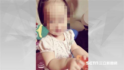 台中1歲女童疑遭保母虐待