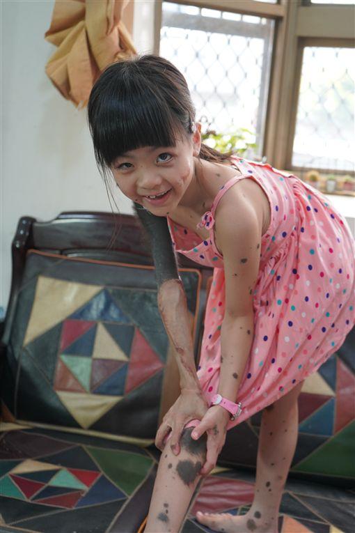 琪琪,黑痣,先天性巨大型黑色素痣(記者郭奕均攝影)