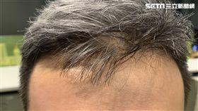 禿頭(圖/資料照)