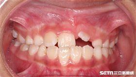 一名9歲伍姓女童露齒笑就缺2顆牙,原來是左上正中門牙與左上犬齒是阻生齒導致。(圖/童綜合醫院提供)