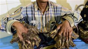 孟加拉,罕見疾病,樹人綜合症,截肢,肉疣(圖/翻攝自YOUTUBE  PatrynWorldLatestNew)