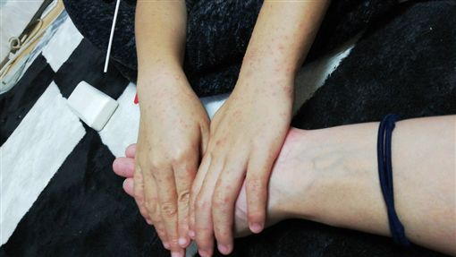 日本東京都內感染「手足口病」的幼童患者超過警報標準,東京都政府今天時隔兩年再度發布手足口病流行警報,呼籲民眾勤洗手預防感染。(圖/翻攝自推特)