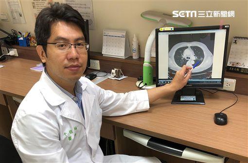 台大醫院新竹分院,胸腔內科,于鎧綸,低劑量電腦斷層檢查,CT,健檢,肺結節,肺癌