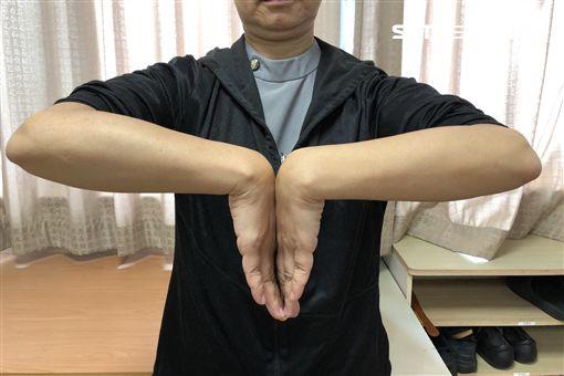 手麻,腕隧道症候群,台中慈濟醫院,復健科,李信賢,手術,副木