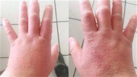 汗皰疹,水泡,感染,皮膚 圖/翻攝新竹大小事