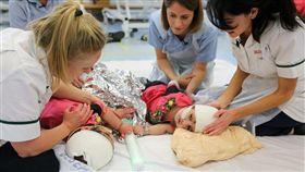巴基斯坦,連頭嬰,姊妹,分割,醫療,手術,英國(圖/翻攝自大奧蒙德街兒童醫院網頁)