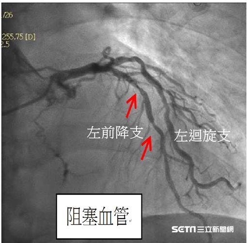心導管檢查發現患者陳先生左前降支阻塞約70至80%。(圖/國泰醫院提供)