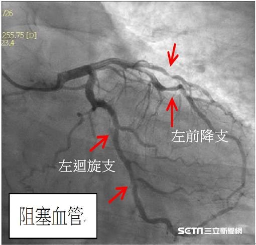 心導管檢查發現患者陳先生左迴旋支阻塞約50至60%。。(圖/國泰醫院提供)