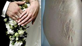 醫師娘新婚2個月「皮膚突潰爛崩裂」…夫一句話露恐怖馬腳(圖/微博,PIXABAY)