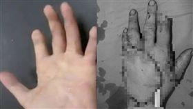 工人手掌四分五裂變肉塊 神醫連開13小時刀「拼圖」救回 圖/翻攝自Twitter