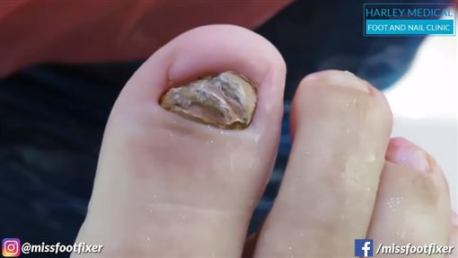 影/噁爆!腳指甲感染「黃綠色變形腫脹」 醫治療狂噴濃水圖/翻攝自Miss Foot Fixer Marion Yau YouTubehttps://www.youtube.com/watch?v=WqFrW_oVbKw
