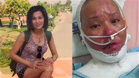 高薪女強人遇氣爆70%嚴重燒傷毀容 她現況曝光超感人(陽光基金會提供)