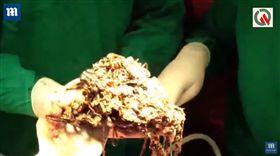 噁心慎入!肚內藏了200萬 26歲女怪病「狂吃金飾」(圖/翻攝自DailyMail YouTube)