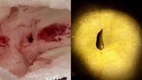 泰國,水蛭,女童,吸血。(圖/翻攝自臉書)