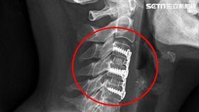 胸悶,胸痛,花蓮慈濟醫院,頸椎間盤,軟骨,脊椎神經,脊椎微創外科,洪祥益 圖/花蓮慈濟醫院