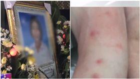 泰國日前發生一起離奇病例,一名16歲少女某日突然全身紅腫、發高燒,四處求醫後病情還是沒有好轉,少女便突然暴斃離世,讓家屬十分傷心,他們懷疑少女是因為被跳蚤叮咬才會引發過敏,並把跳蚤的來源怪罪給家裡的貓咪、決定要將貓咪們棄養。但事情爆發後,就有醫生懷疑少女根本不是因為被跳蚤咬傷才發病,而是罹患了「紅斑性狼瘡」。(圖/翻攝自TNAMCOT YouTube)
