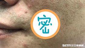 40歲患者王先生買「天然草本除痣膏」,塗抹於黑痣上竟造成化學性灼傷。(圖/醫師黃昭瑜提供)