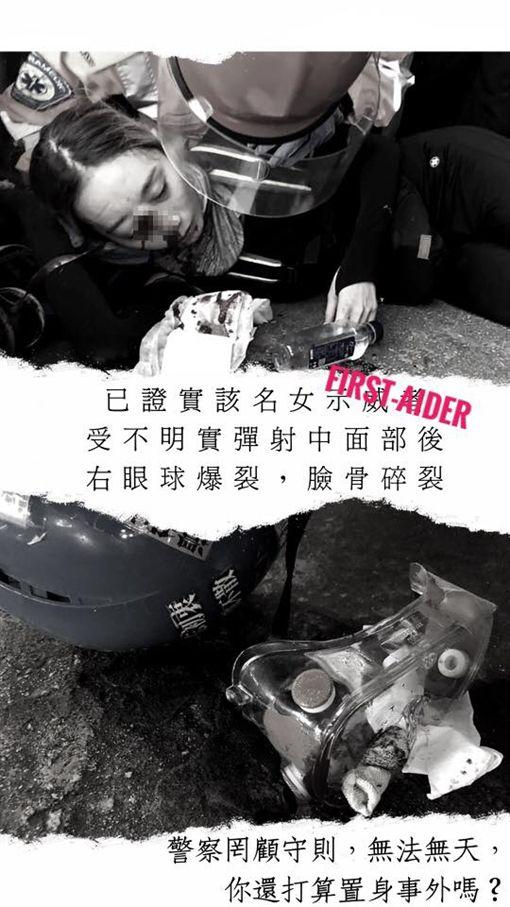反送中/港女右眼中彈!妹妹淚崩「確定毀容恐失明」反送中 香港 右眼 中彈 失明圖/翻攝自推特