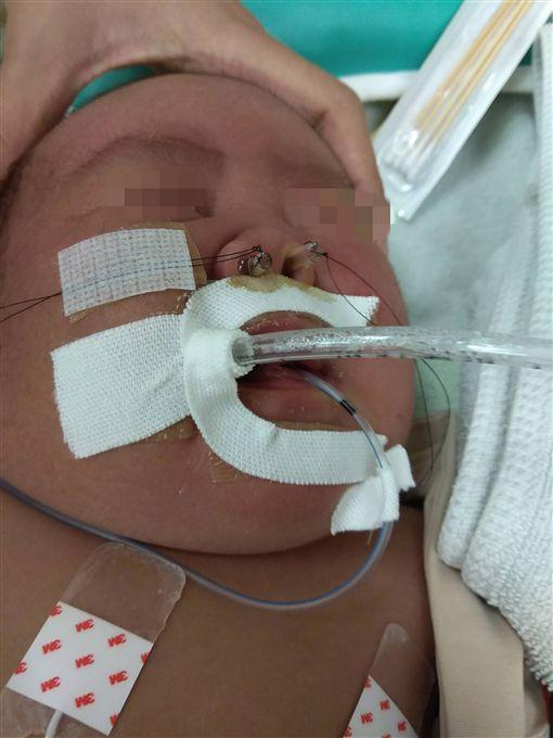 花蓮門諾醫院一名女嬰小布丁,因呼吸急促、不願喝奶引起關注,經檢查發現小布丁後鼻孔大小僅正常嬰孩的1/7大,屬於少見的新生兒疾病「後鼻孔狹窄」,目前使用鼻管置入方式治療。(花蓮門諾醫院提供)