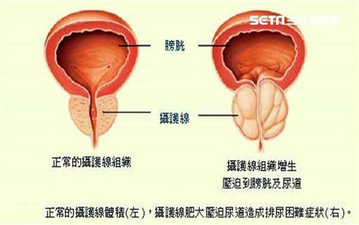 安南醫院,泌尿科,林育緯,尿尿,膀胱,腎臟,攝護腺