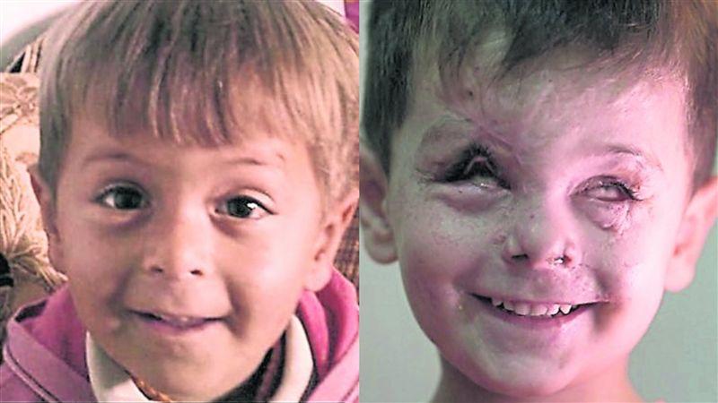 敘利亞戰火悲歌!3歲男童遭空襲 臉遭毀雙眼失明仍展笑容