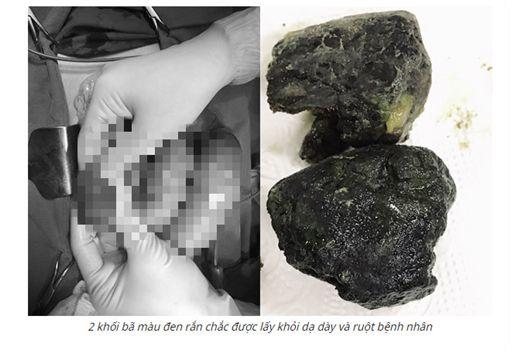 天天喝珍奶!男肚痛嘔吐 腸道竟藏2大塊「黑礦石」(圖/翻攝自vietnamnet)