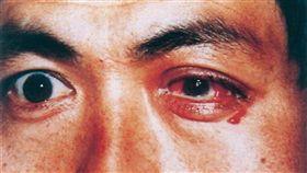 淋病,淋菌性結膜炎,淋病,眼睛,健康,眼科,長庚,陳宏吉, 圖/翻攝自百度百科