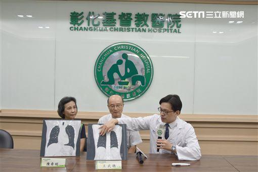 口罩,騎機車,牧師,肺腺癌,彰化基督教醫院,胸腔外科,王秉彥,3D影像單孔胸腔鏡,手術