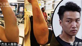 香港民陣召集人岑子杰 遭蒙面人持棒球棍長刀襲擊(圖片來源/立場新聞)